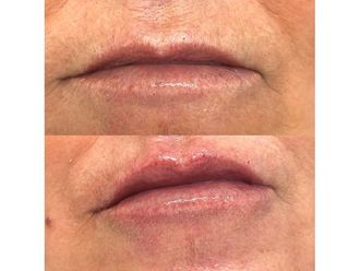 Aumento labios - 650006