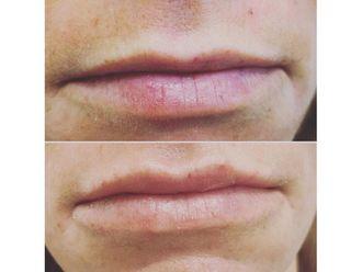 Aumento labios - 650008