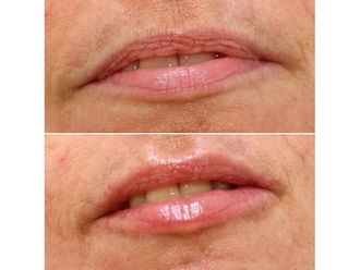 Aumento labios - 650017