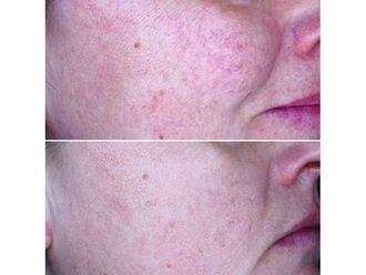 Tratamiento antimanchas - 650024