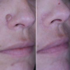 Verrugas - Clínica Dr. Carvajal