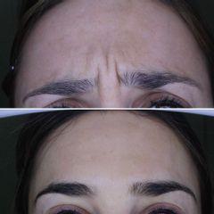 Bótox - Clínica Dr. Carvajal