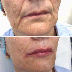 Aumento de labios - Clínica Dr. Carvajal