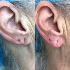 Lobuloplastia - Clínica Dr. Carvajal