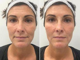 Rejuvenecimiento facial-788088
