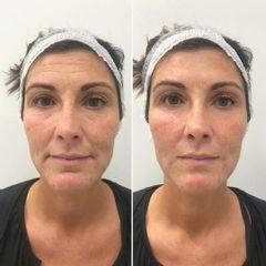 Rejuvenecimiento facial - Clínica Dr. Carvajal