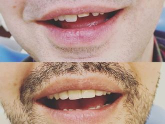 Implantes dentales-788089