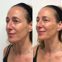 Tratamiento Facial Integral - Clínica Dr. Carvajal