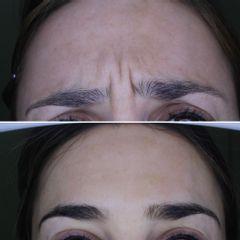 Toxina Botulínica - Clínica Dr. Carvajal