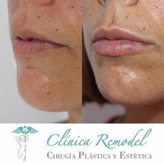 Aumento de labios - Dra. Estefanía Poza Guedes