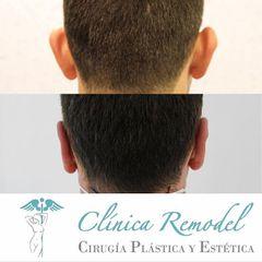 Otoplastia - Dra. Estefanía Poza Guedes