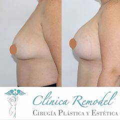 Aumento de pecho - Dra. Estefanía Poza Guedes