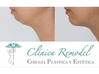 Liposucción - Dra. Estefanía Poza Guedes