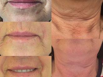 Rejuvenecimiento facial-600929