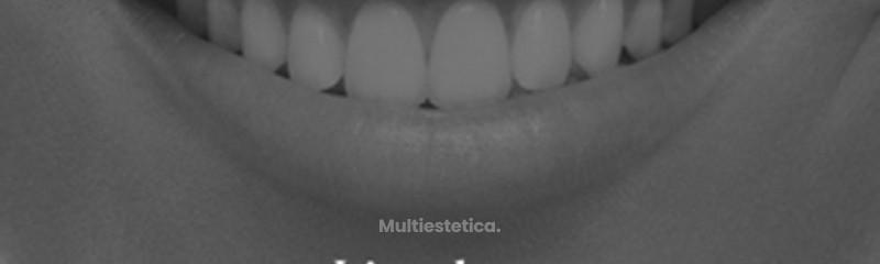 labios.png