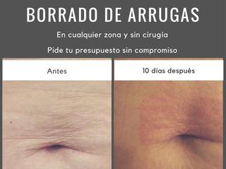 Antes y después arrugas