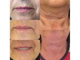 Antes y después Eliminación de arrugas - Clínica Lasery