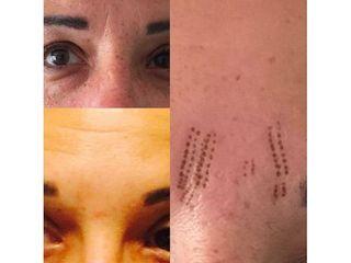 Antes y después Bótox - Clínica Lasery