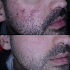 Tratamiento antiacné - Clínica de Medicina Estética Dr. Carvajal