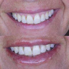 Sonrisa gingival - Clínica de Medicina Estética Dr. Carvajal