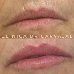 Aumento de labios - Clínica de Medicina Estética Dr. Carvajal