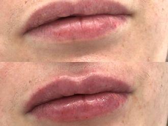 Aumento labios - 800658