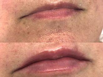 Aumento labios - 800659