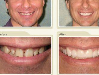 Carillas dentales - 429786