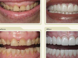 Carillas dentales - 429787