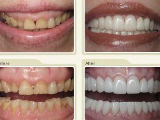 Ortodoncia - 429788