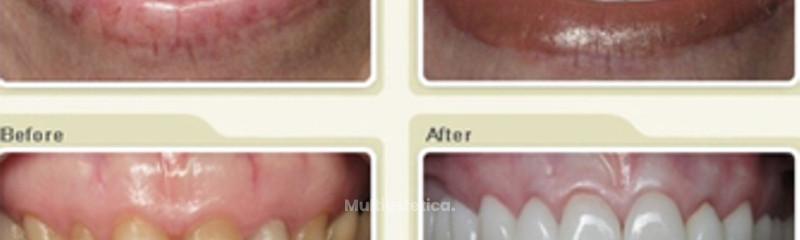 Vuelve a sonreír, gran desgaste y pérdida de función y estética Dental