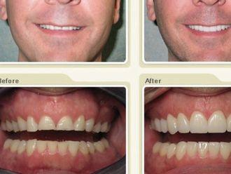 Carillas dentales - 429790