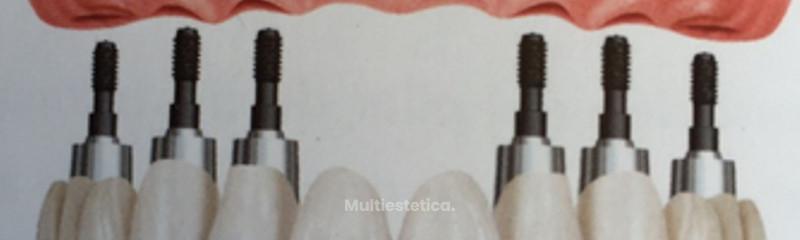 Prótesis fija sobre 6 implantes de titanio