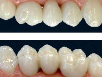 Ortodoncia - 467759