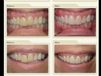 Carillas dentales - 482742