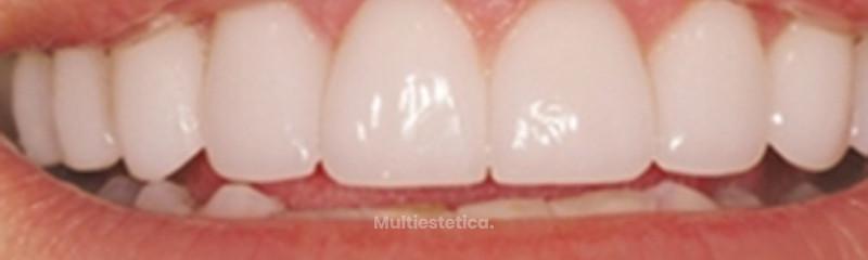 Carillas de porcelana sin tallar el diente