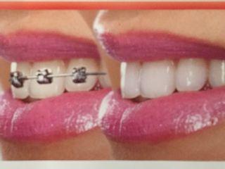 Brackets/Ortodoncia Invisaling