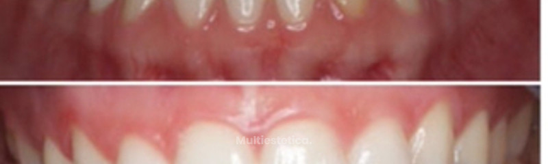 BLANQUEAMIENTO DENTAL .ANTES/DESPUES