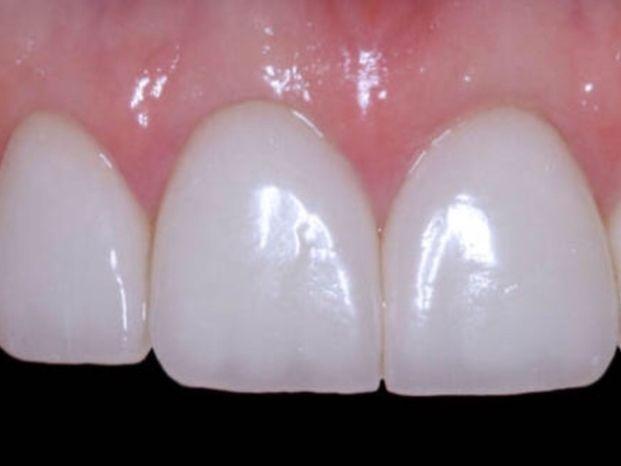 Centros de Implantología y Estética Dental.CEID.Dentistas en Barcelona