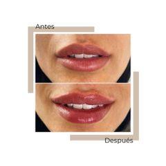 Aumento de labios - Dra. Lorena García Cubas
