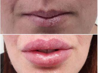 Aumento labios-634955