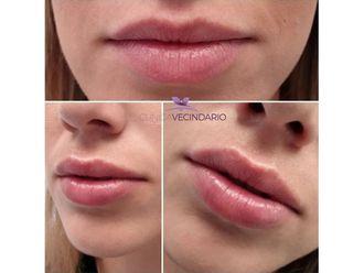Aumento labios - 641011