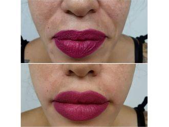 Aumento labios - 641012