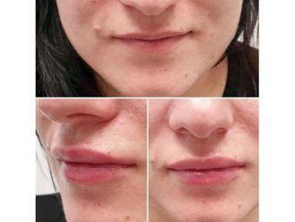 Aumento labios - 641013