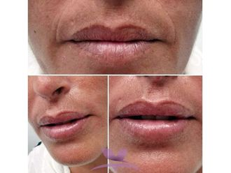 Aumento labios - 641014