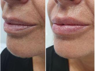 Aumento labios - 641090