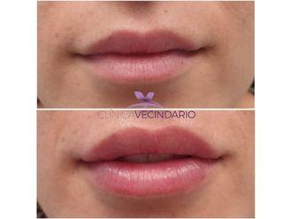 Aumento labios-645464