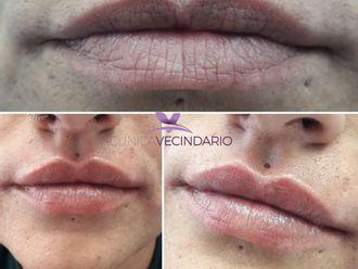 Aumento labios-647953