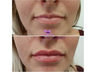 Aumento labios-699736