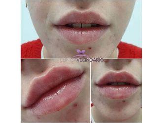 Aumento labios-699741